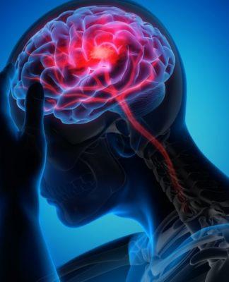 how long does migraine last