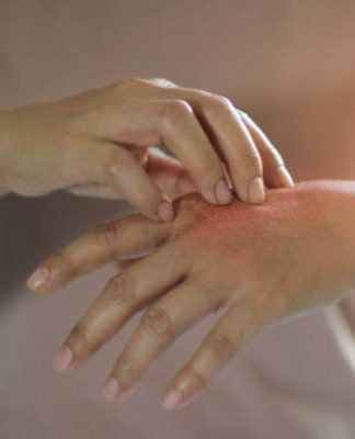 How Can You Prevent Burn Injuries